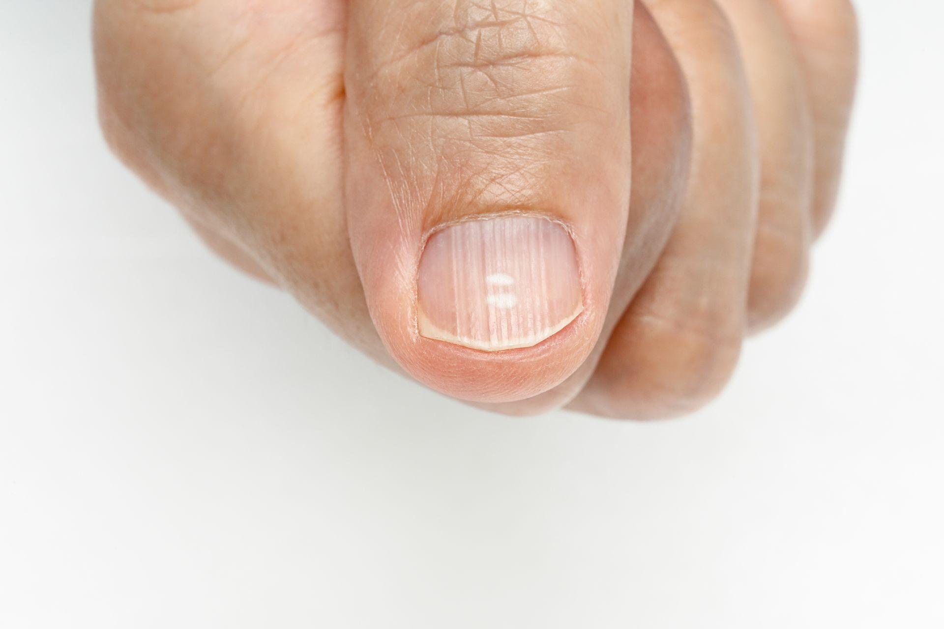 Бороздка на ногте фото